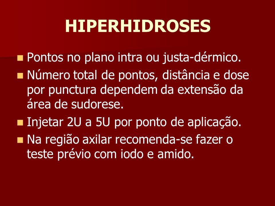 HIPERHIDROSES Pontos no plano intra ou justa-dérmico.