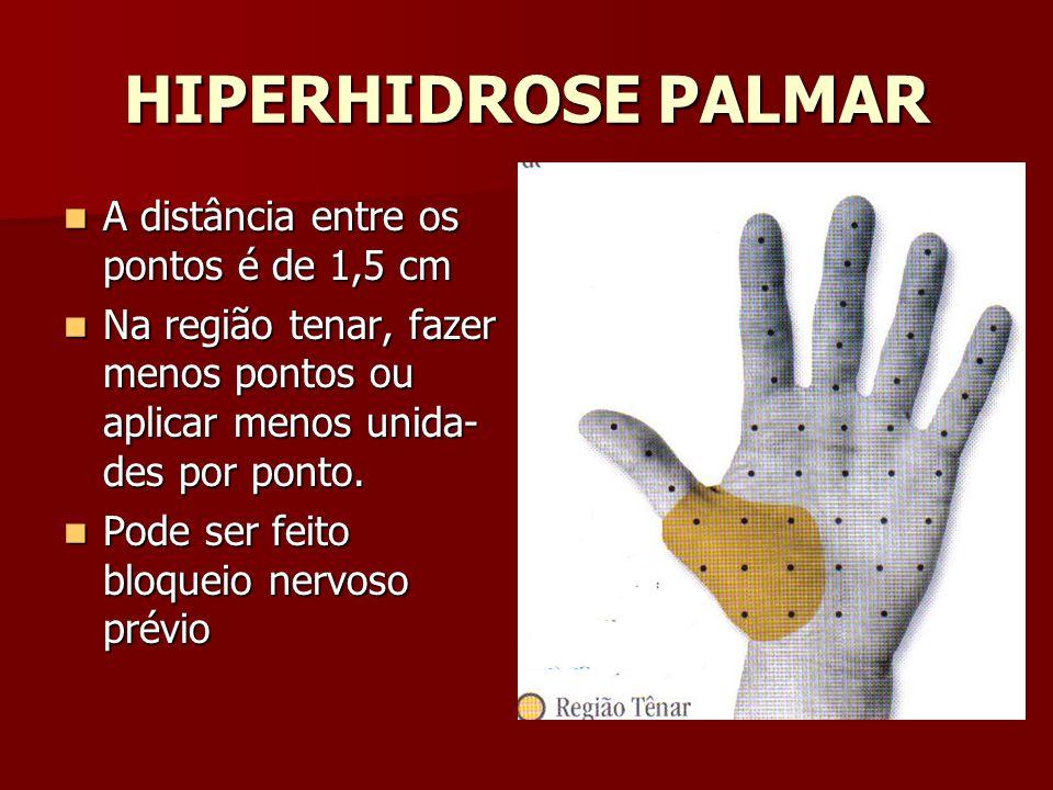 HIPERHIDROSE PALMAR A distância entre os pontos é de 1,5 cm