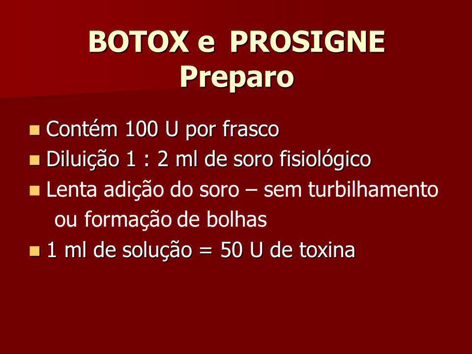 BOTOX e PROSIGNE Preparo
