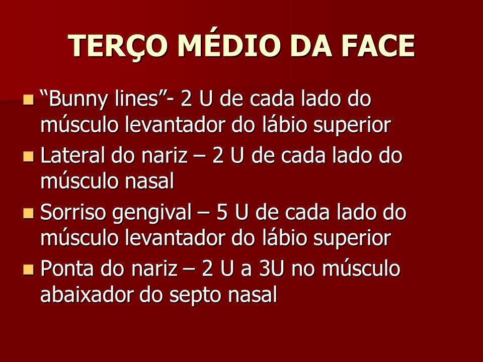 TERÇO MÉDIO DA FACE Bunny lines - 2 U de cada lado do músculo levantador do lábio superior. Lateral do nariz – 2 U de cada lado do músculo nasal.