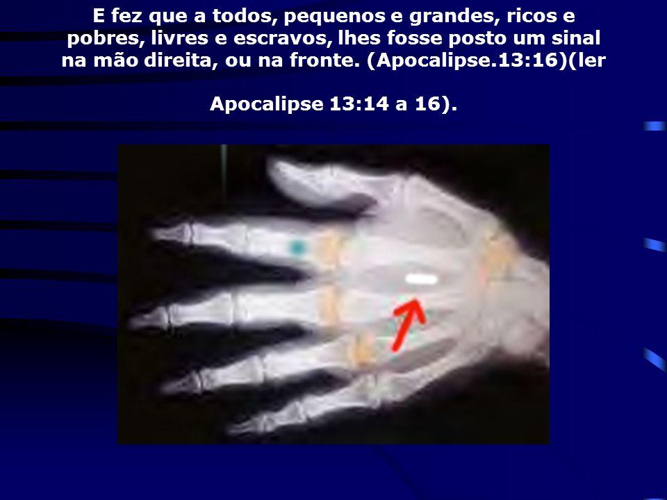 E fez que a todos, pequenos e grandes, ricos e pobres, livres e escravos, lhes fosse posto um sinal na mão direita, ou na fronte.