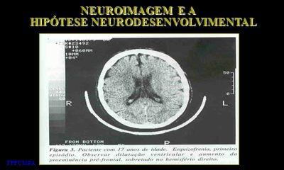 HIPÓTESE NEURODESENVOLVIMENTAL