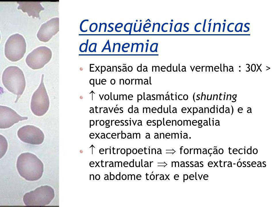 Conseqüências clínicas da Anemia