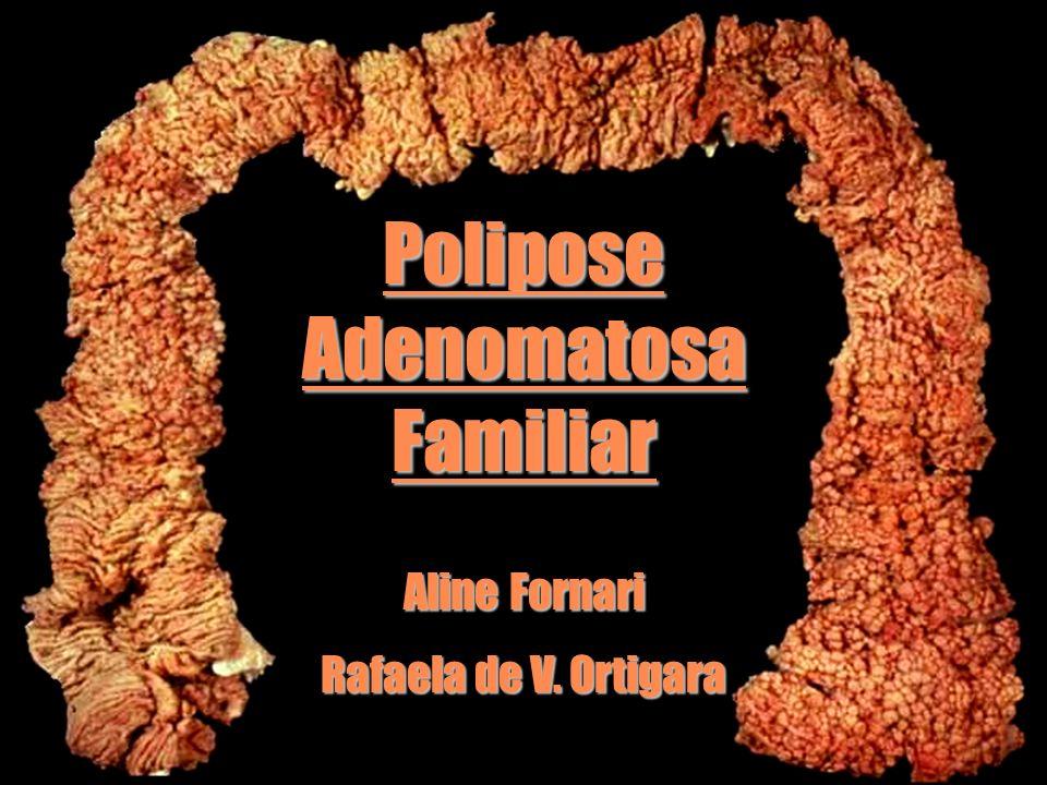 Polipose Adenomatosa Familiar Aline Fornari Rafaela de V. Ortigara