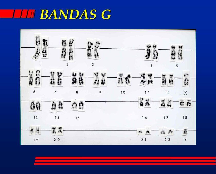 BANDAS G