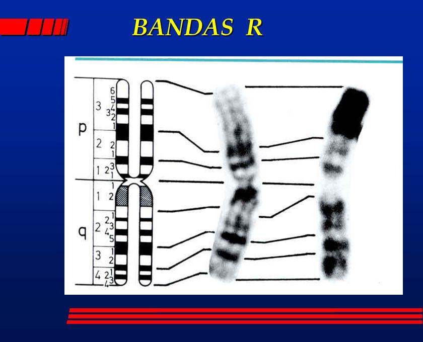 BANDAS R
