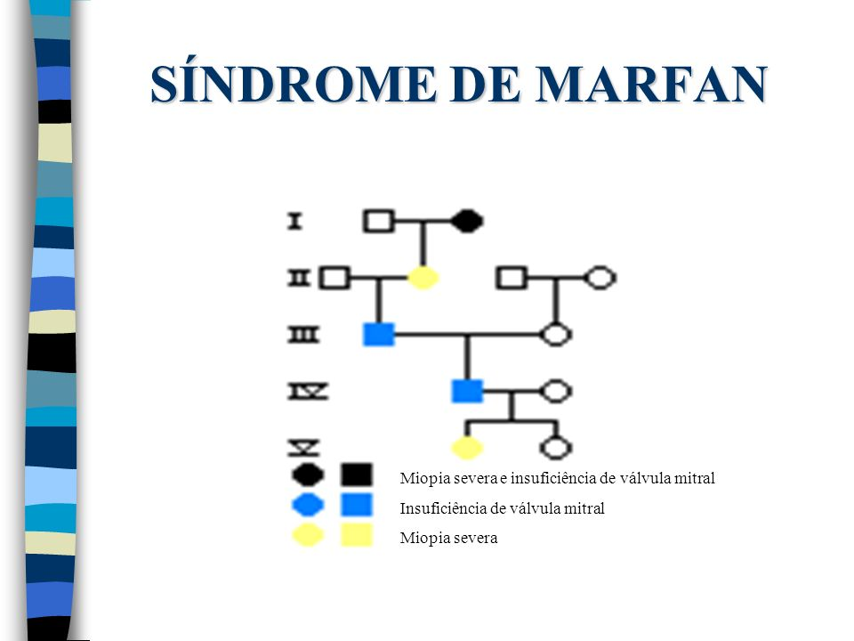 SÍNDROME DE MARFAN Miopia severa e insuficiência de válvula mitral