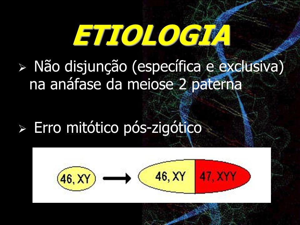 ETIOLOGIA Não disjunção (específica e exclusiva) na anáfase da meiose 2 paterna.