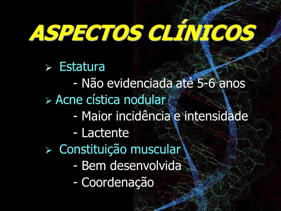 ASPECTOS CLÍNICOS Estatura - Não evidenciada até 5-6 anos