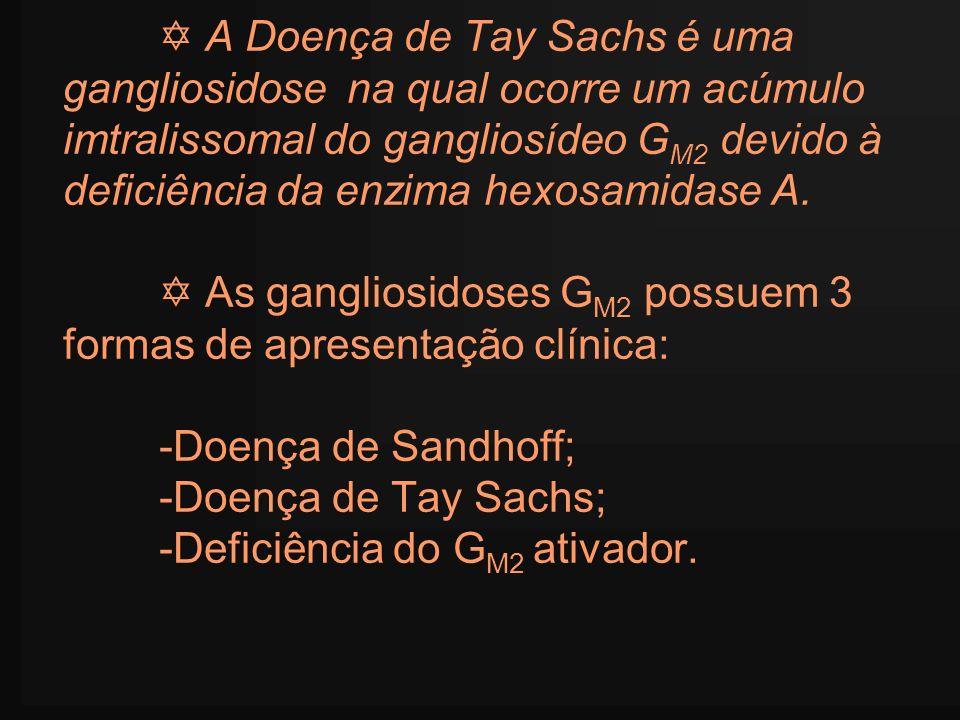  A Doença de Tay Sachs é uma gangliosidose na qual ocorre um acúmulo imtralissomal do gangliosídeo GM2 devido à deficiência da enzima hexosamidase A.
