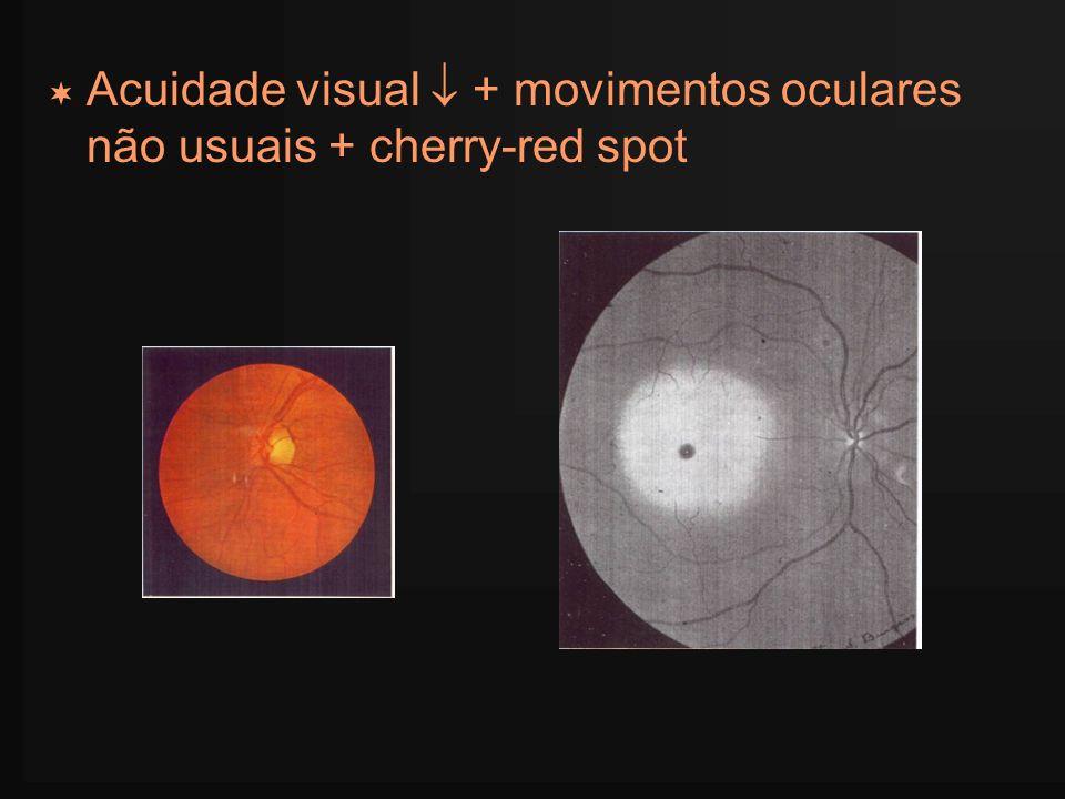 Acuidade visual  + movimentos oculares não usuais + cherry-red spot