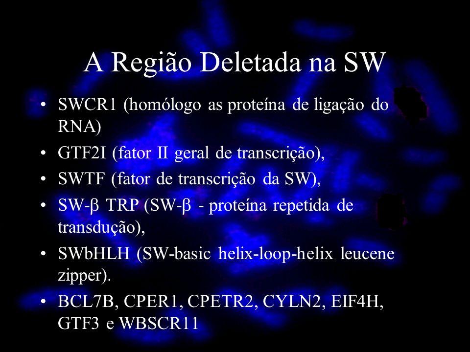A Região Deletada na SW SWCR1 (homólogo as proteína de ligação do RNA)