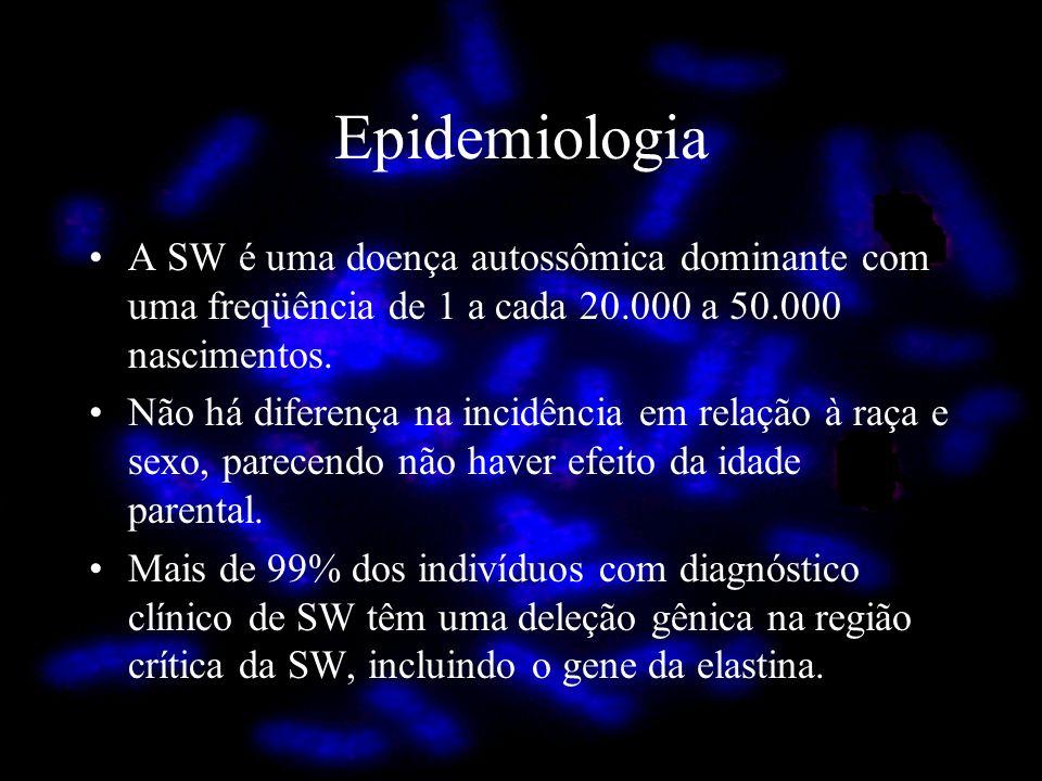 Epidemiologia A SW é uma doença autossômica dominante com uma freqüência de 1 a cada 20.000 a 50.000 nascimentos.