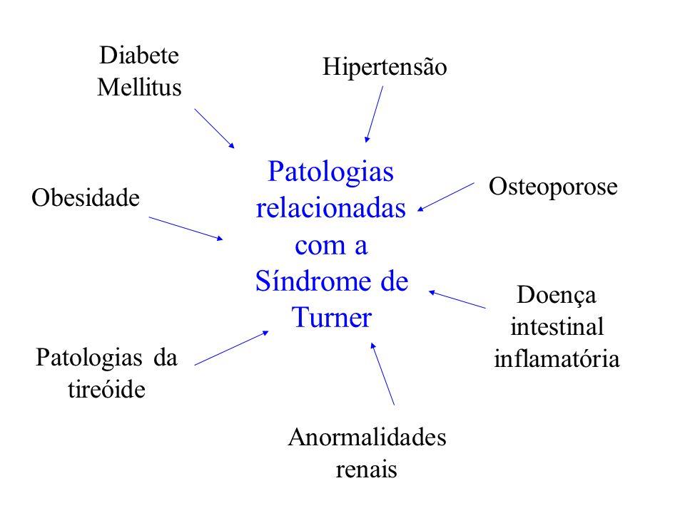 Patologias relacionadas com a Síndrome de Turner