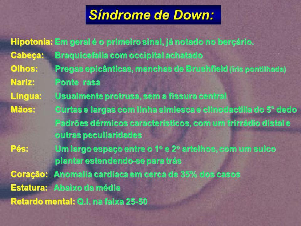 Síndrome de Down: Hipotonia: Em geral é o primeiro sinal, já notado no berçário. Cabeça: Braquicefalia com occipital achatado.