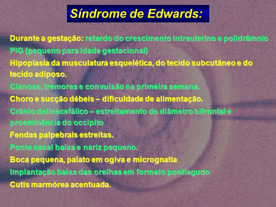 Síndrome de Edwards: Durante a gestação: retardo do crescimento intrauterino e polidrâmnio. PIG (pequeno para idade gestacional)