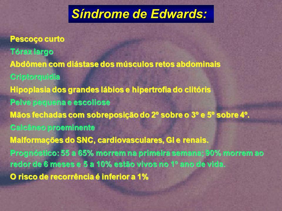 Síndrome de Edwards: Pescoço curto Tórax largo