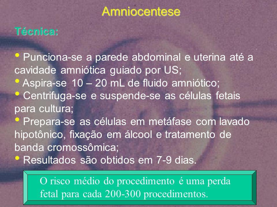 Amniocentese Técnica: