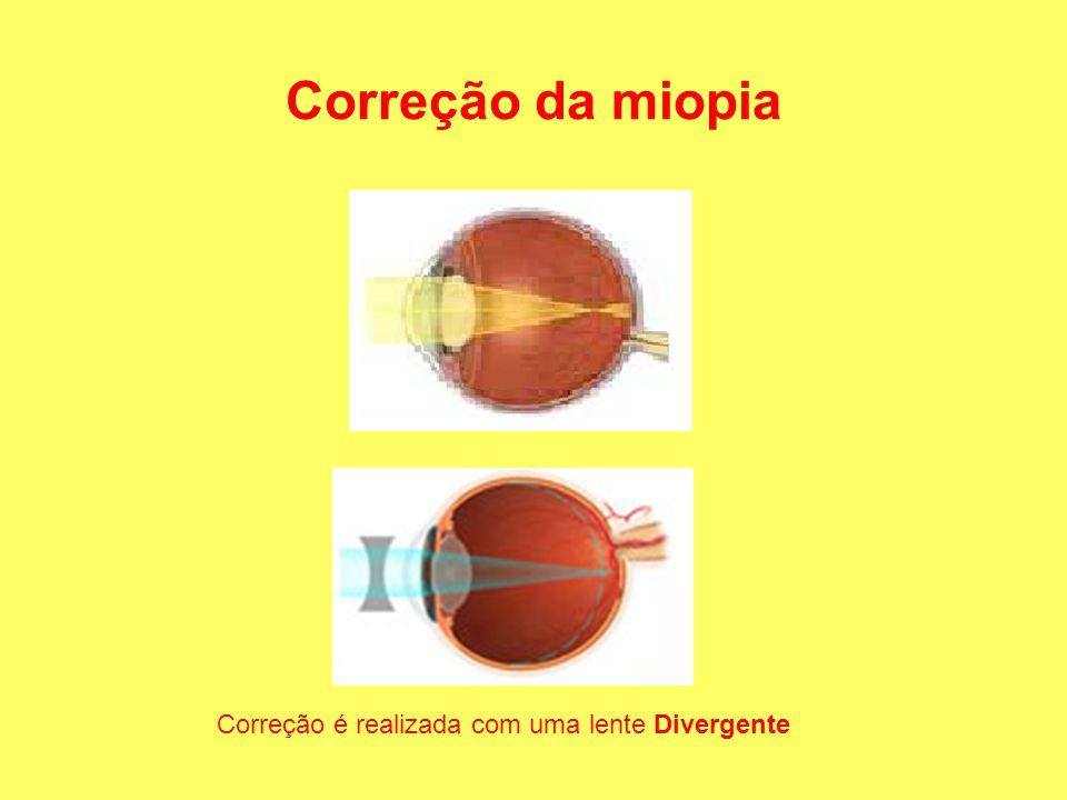 Correção da miopia Correção é realizada com uma lente Divergente