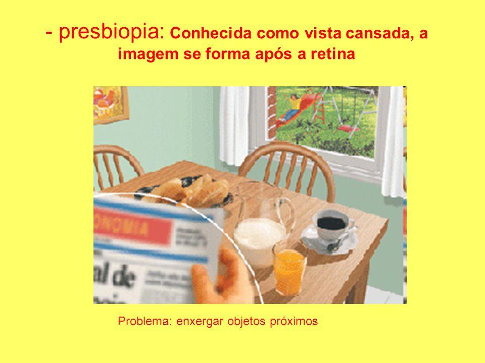 - presbiopia: Conhecida como vista cansada, a imagem se forma após a retina