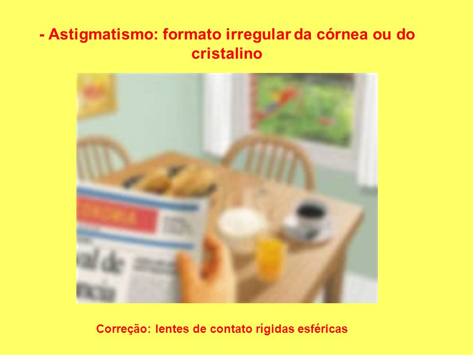 - Astigmatismo: formato irregular da córnea ou do cristalino