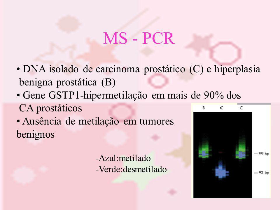 MS - PCR DNA isolado de carcinoma prostático (C) e hiperplasia