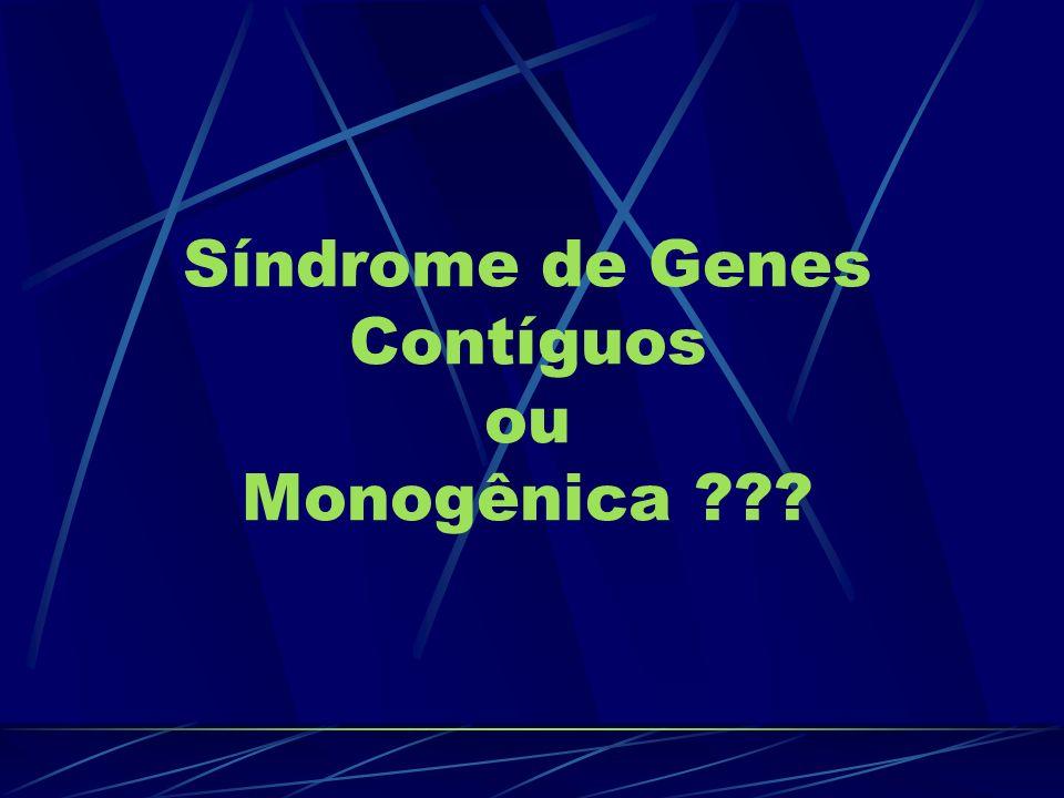 Síndrome de Genes Contíguos ou Monogênica