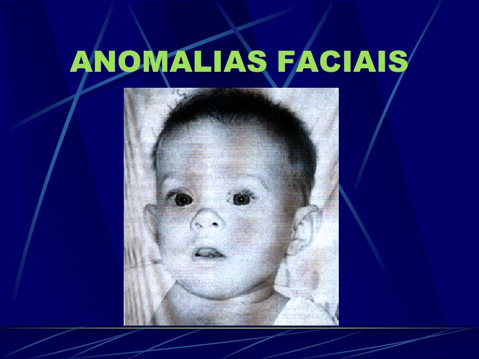 ANOMALIAS FACIAIS