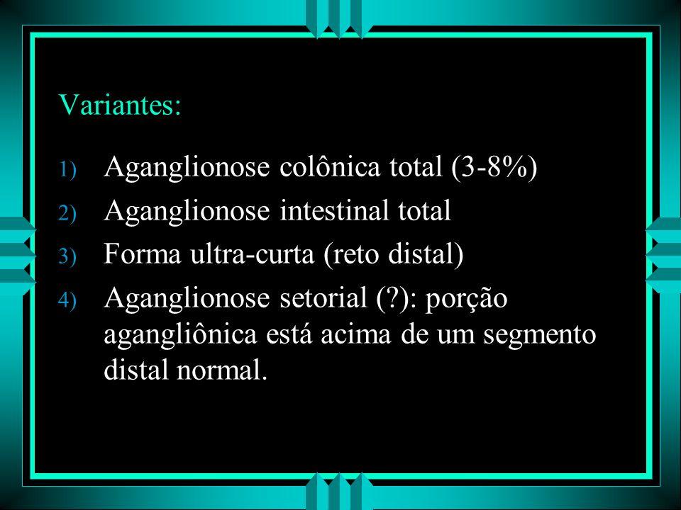 Variantes: Aganglionose colônica total (3-8%) Aganglionose intestinal total. Forma ultra-curta (reto distal)