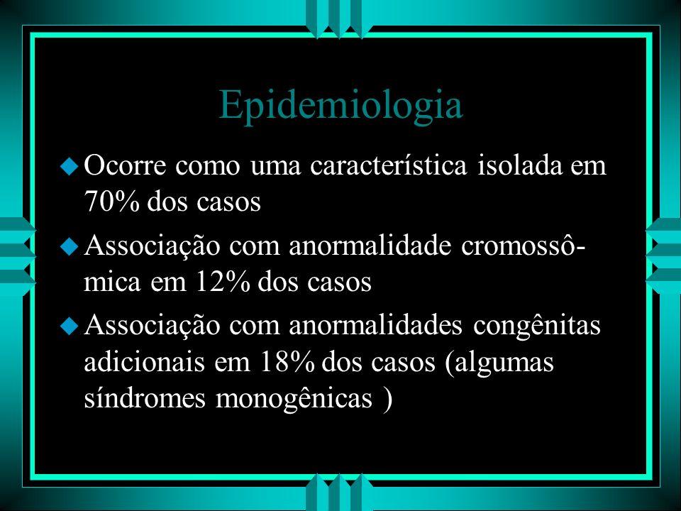 Epidemiologia Ocorre como uma característica isolada em 70% dos casos