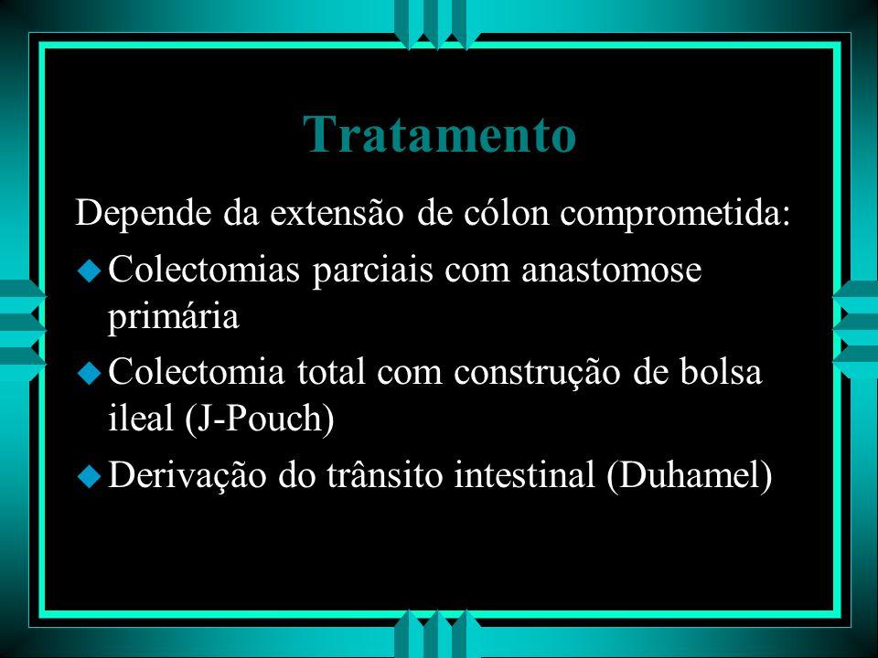 Tratamento Depende da extensão de cólon comprometida: