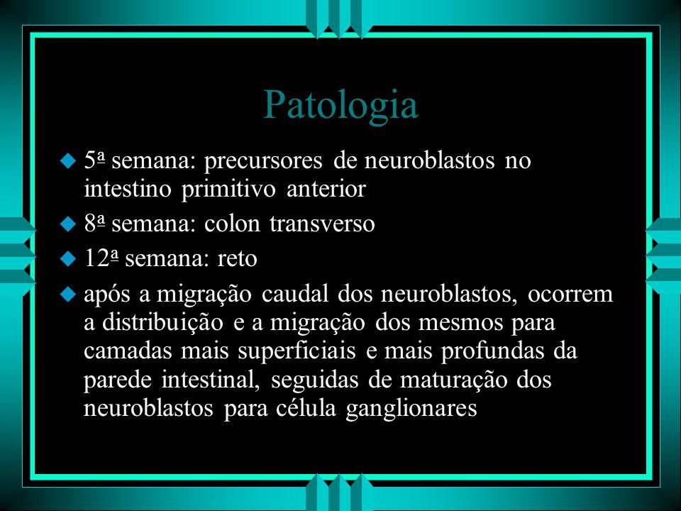 Patologia 5a semana: precursores de neuroblastos no intestino primitivo anterior 8a semana: colon transverso.