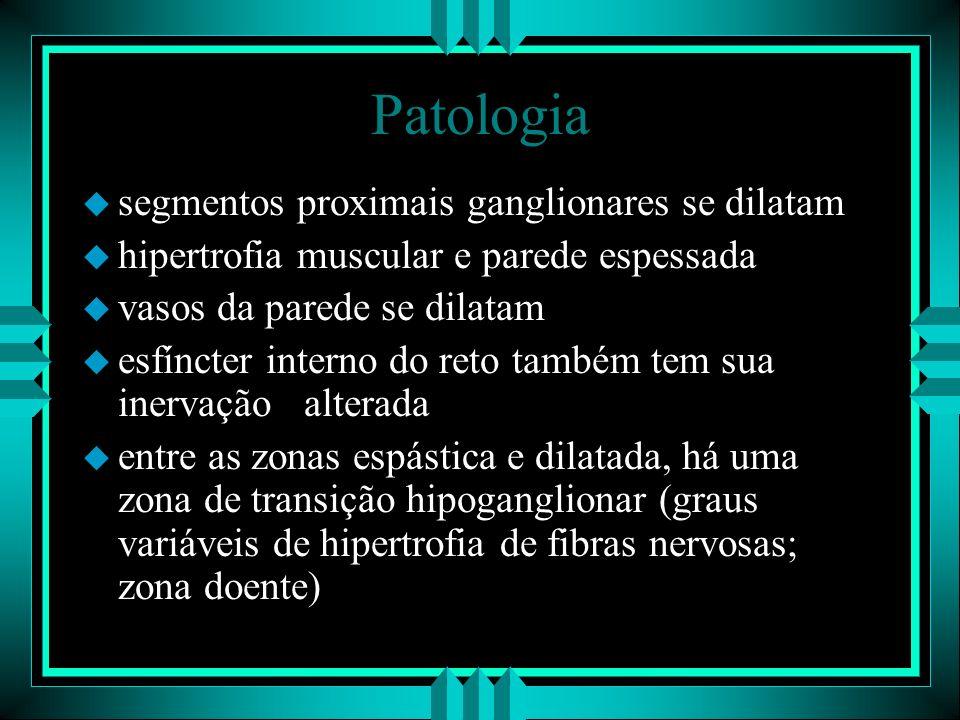 Patologia segmentos proximais ganglionares se dilatam