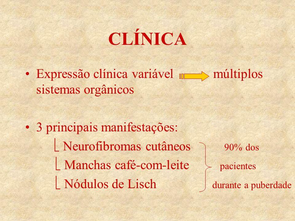 CLÍNICA Expressão clínica variável múltiplos sistemas orgânicos