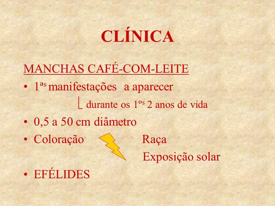 CLÍNICA MANCHAS CAFÉ-COM-LEITE 1ªs manifestações a aparecer