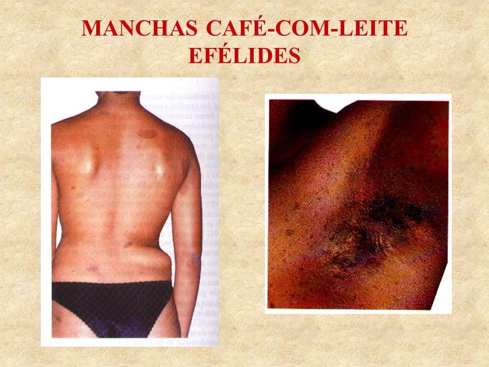 MANCHAS CAFÉ-COM-LEITE EFÉLIDES
