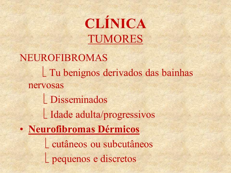 CLÍNICA TUMORES NEUROFIBROMAS