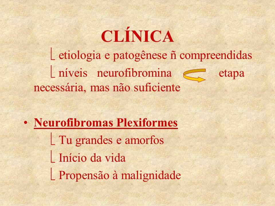 CLÍNICA  etiologia e patogênese ñ compreendidas