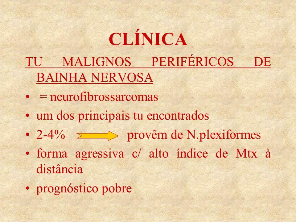 CLÍNICA TU MALIGNOS PERIFÉRICOS DE BAINHA NERVOSA