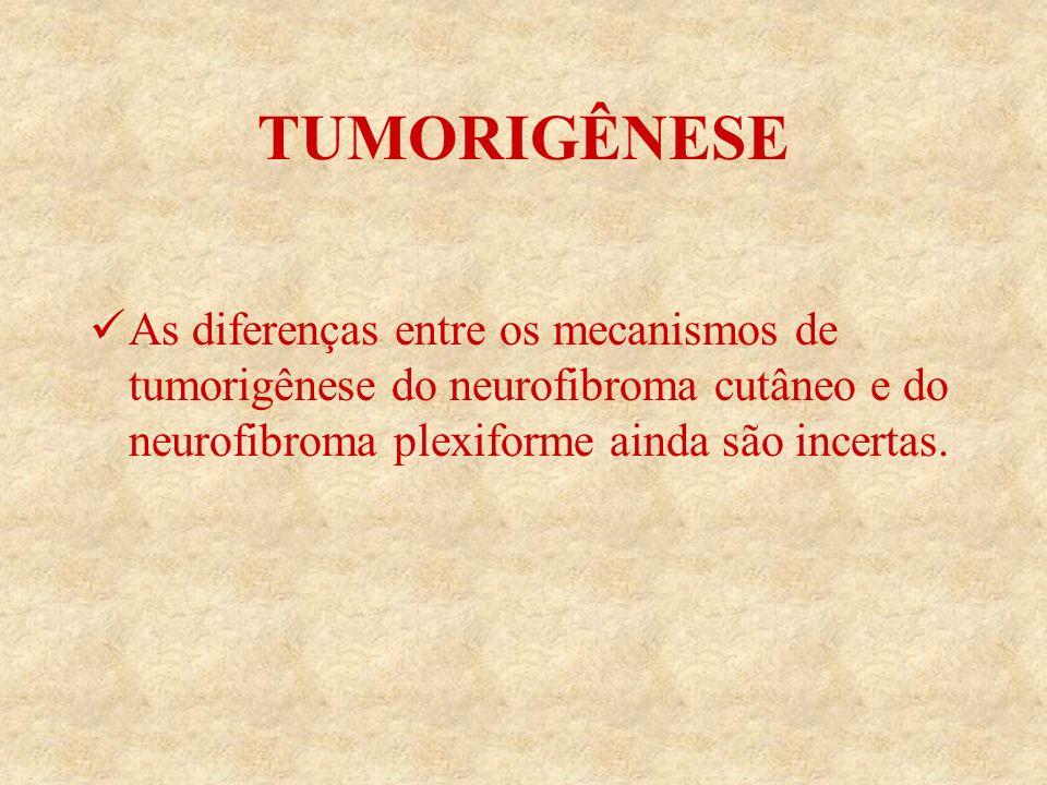 TUMORIGÊNESE As diferenças entre os mecanismos de tumorigênese do neurofibroma cutâneo e do neurofibroma plexiforme ainda são incertas.