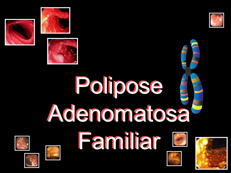 Polipose Adenomatosa Familiar