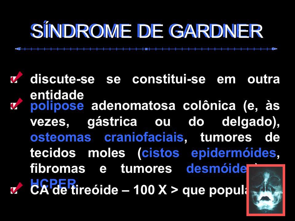 SÍNDROME DE GARDNER SÍNDROME DE GARDNER