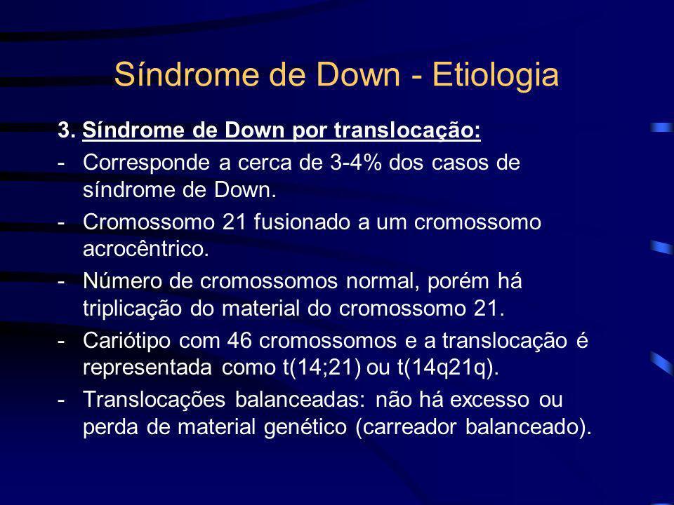 Síndrome de Down - Etiologia