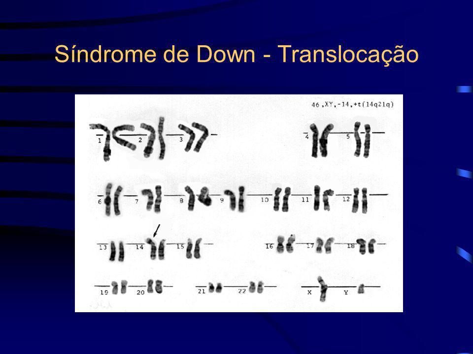 Síndrome de Down - Translocação