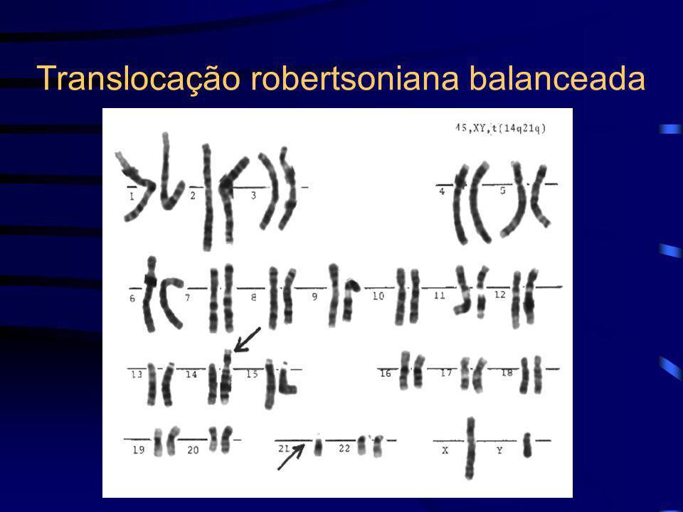 Translocação robertsoniana balanceada
