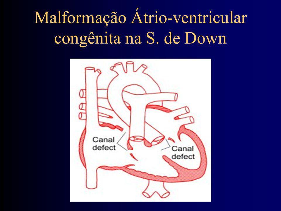 Malformação Átrio-ventricular congênita na S. de Down