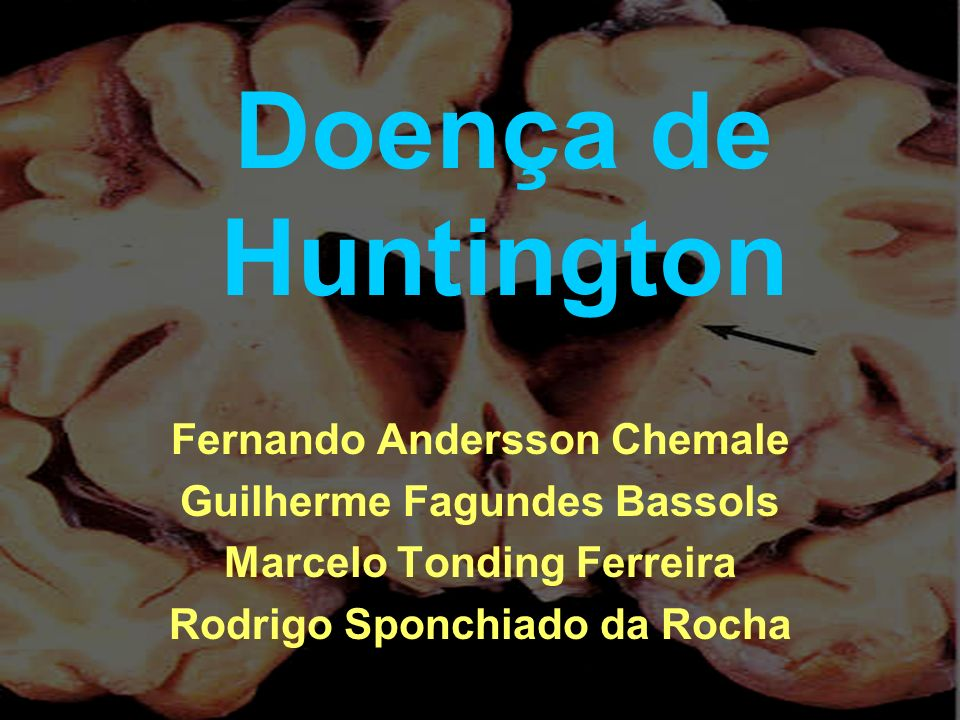 Doença de Huntington Fernando Andersson Chemale