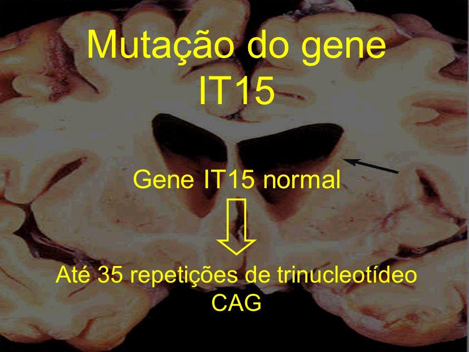 Gene IT15 normal Até 35 repetições de trinucleotídeo CAG