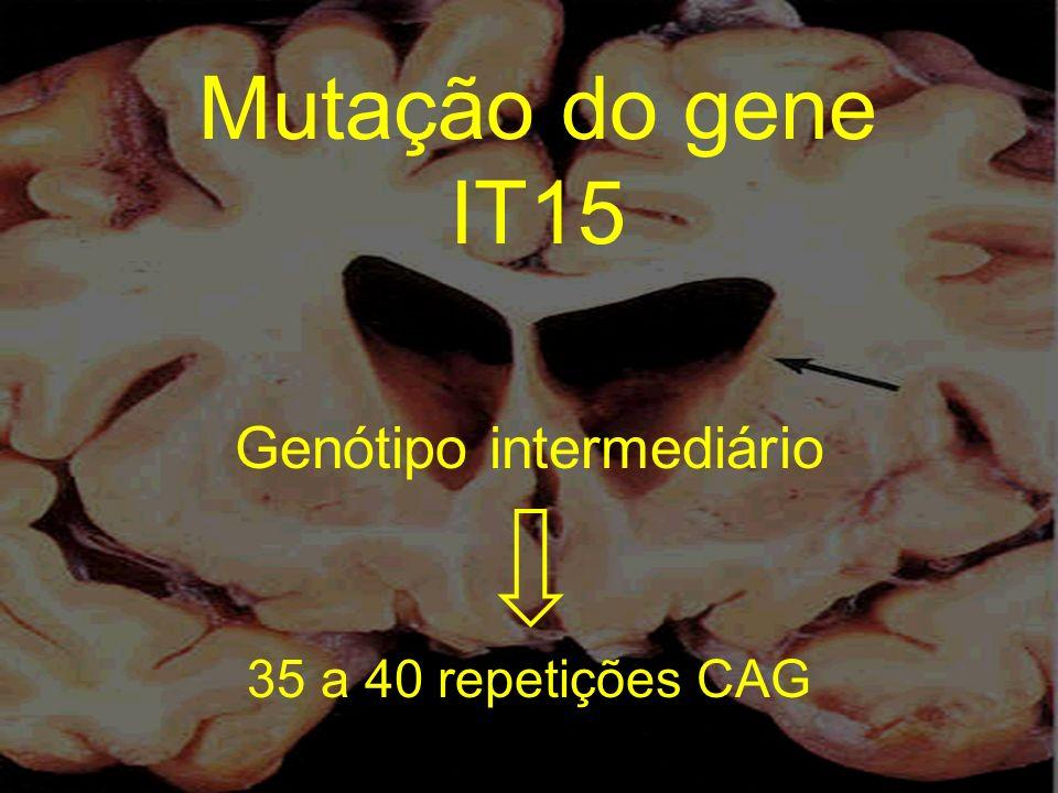 Genótipo intermediário 35 a 40 repetições CAG