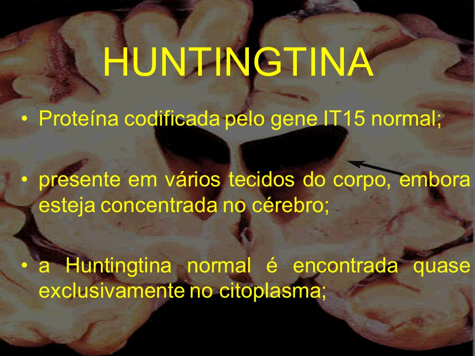 HUNTINGTINA Proteína codificada pelo gene IT15 normal;